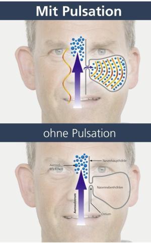 Entzündung-Nasennebenhöhlen-Pulsation
